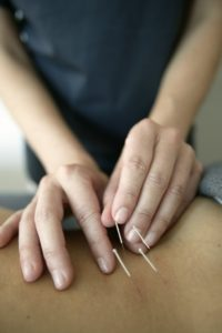 Acupuncture Treatment, NW Arkansas